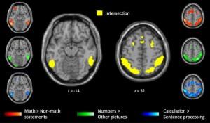 Las imágenes por resonancia magnética funcional han servido para detectar las zonas que se activaban en matemáticos y personas que no lo eran frante a enunciados matemáticos de alto nivel. (Foto: M.Amalric y S.Dehaene/Inserm-CEA)